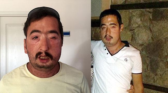 Yüz nakilli Turan Çolak tutuklandı